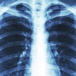 تشخیص-بیماری-انسداد-ریوی-مزمن-COPD