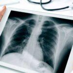 رادیولوژی-قلب-قبل-از-جراحی