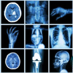 What-is-radiology
